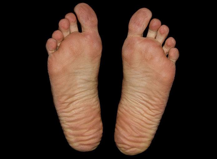 Sposoby na pękające pięty - jak dbać o stopy?