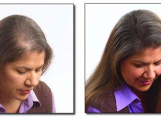 Microringi – szybki sposób na zagęszczanie włosów